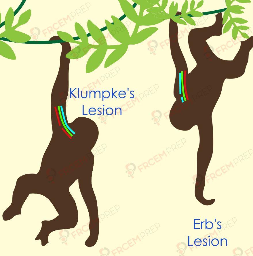 Erb's and Klumpke's palsy illustration